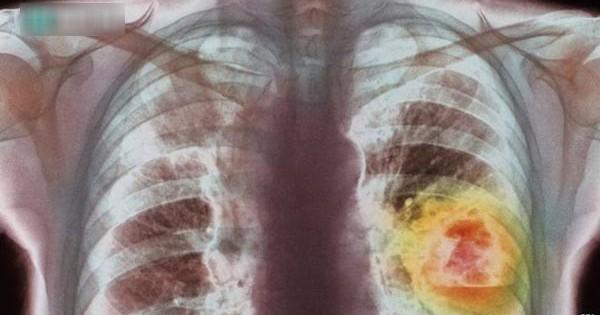Người có 6 thói quen này có tỉ lệ mắc ung thư phổi rất cao: Hãy xem có bạn không để tránh!