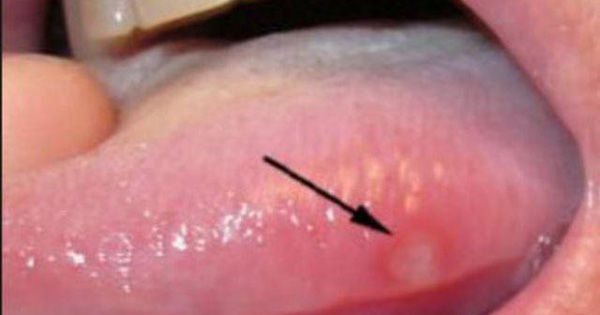Nhiệt miệng mãi không khỏi, đi khám phải cắt 1/2 lưỡi: cách phân biệt ung thư và nhiệt miệng