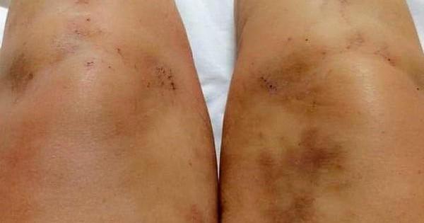 Bà mẹ đột nhiên bị vàng da, toàn thân xước đến chảy máu vì thứ nhiều chị em cũng dùng