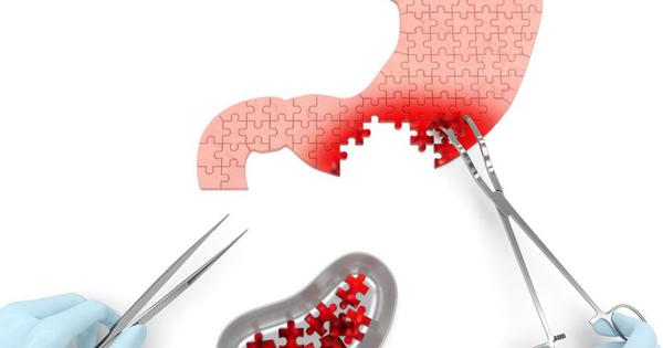 Nếu có 1 trong 4 dấu hiệu sớm nhất của bệnh ung thư dạ dày, tuyệt đối không nên xem nhẹ