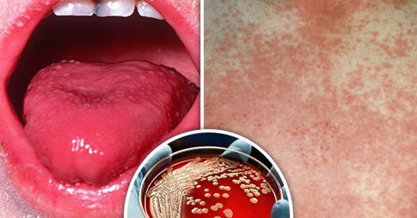 Lưỡi đỏ tươi khi sốt, cảnh báo căn bệnh cực kỳ nguy hiểm