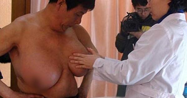 """Sốc: Những người đàn ông ngực """"khủng"""" hơn cả phụ nữ, mượn cả áo ngực của vợ để mặc"""