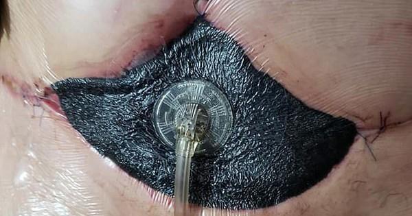 Chi 100 triệu hút mỡ, người phụ nữ đau đớn vì da bụng đen sì, hoại tử