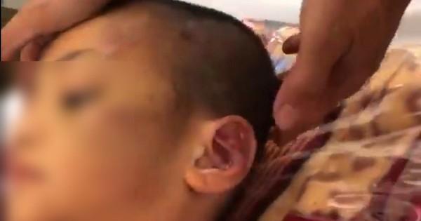 Dư luận phẫn nộ, truy tìm hai phụ nữ hành hạ con riêng đến đa chấn thương