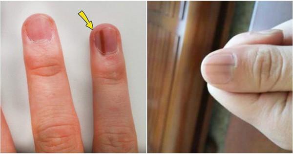 Thấy bàn tay có 1 trong 4 dấu hiệu này: Đi khám ngay vì cơ thể đang cảnh báo bệnh nguy hiểm