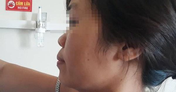 Tóc xơ dễ gãy rụng: Dấu hiệu tưởng bình thường nhưng cảnh báo bạn có thể mắc căn bệnh này