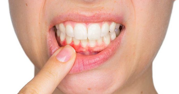 Cảnh báo: Những người bị chảy máu nướu răng có nguy cơ đột quỵ não cao gấp 2 lần người bình thường