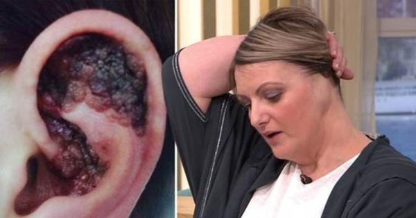 Nằm giường tắm nắng, một phụ nữ phải cắt cụt tai do ung thư da