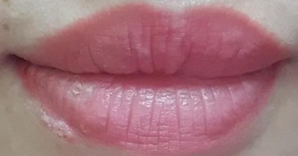 Xăm môi được 3 ngày thì bị mụn rộp herpes ở môi, 2 tuần sau tổn thương toàn thân: 3 nguy cơ có thể gặp sau khi phun xăm bác sĩ muốn mọi người cần biết