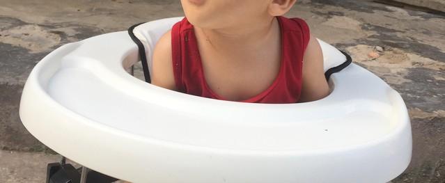 Đau thương số phận của bé trai 11 tháng tuổi sinh ra bị dính mí mắt bẩm sinh