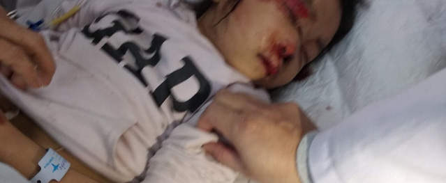 Bàng hoàng mẹ tử vong tại chỗ, con gái bị thương nặng sau khi va chạm với xe tải