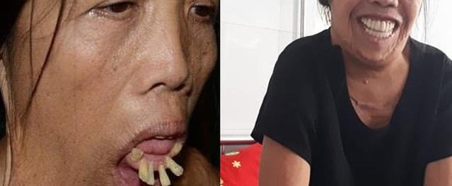 Chuyện chưa biết về hành trình làm lại khuôn mặt của người phụ nữ 50 năm không ngậm được miệng