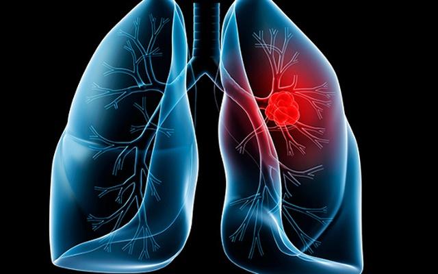 Thử nghiệm mới chống ung thư phổi giảm 43% nguy cơ tử vong