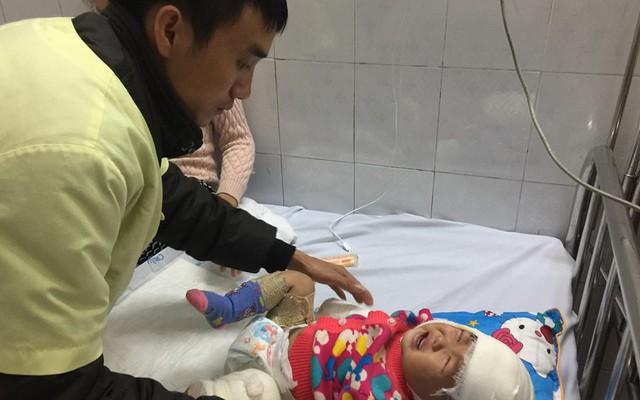 Những hình ảnh xót xa về bé gái dân tộc 12 tháng tuổi bị bỏng nặng vì ngã vào bếp lửa