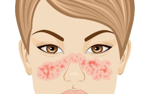 Điều trị bệnh Lupus ban đỏ
