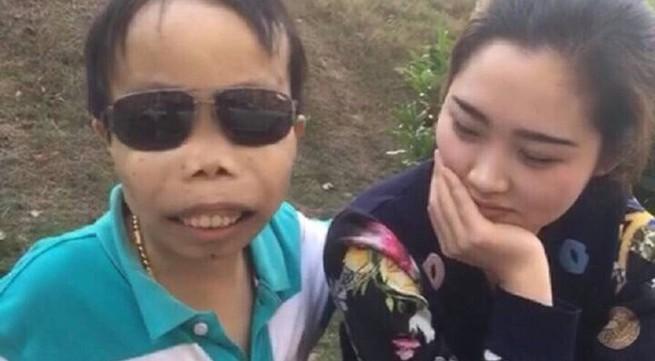 """Tìm hiểu về căn bệnh """"đại gia xấu trai nhất Trung Quốc"""" mắc phải"""