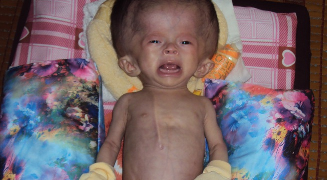 Bé gái 3 tháng tuổi đầu to hơn người sự sống dần lụi tắt vì không tiền chữa bệnh