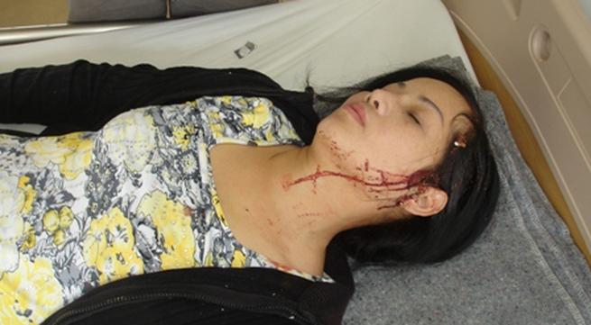 Lâm tặc đánh vỡ đầu nữ giám đốc Cty quản lý bảo vệ rừng