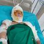 Qua cơn nguy kịch, người mẹ nghèo bị bỏng nặng lại bị nhiễm nấm máu